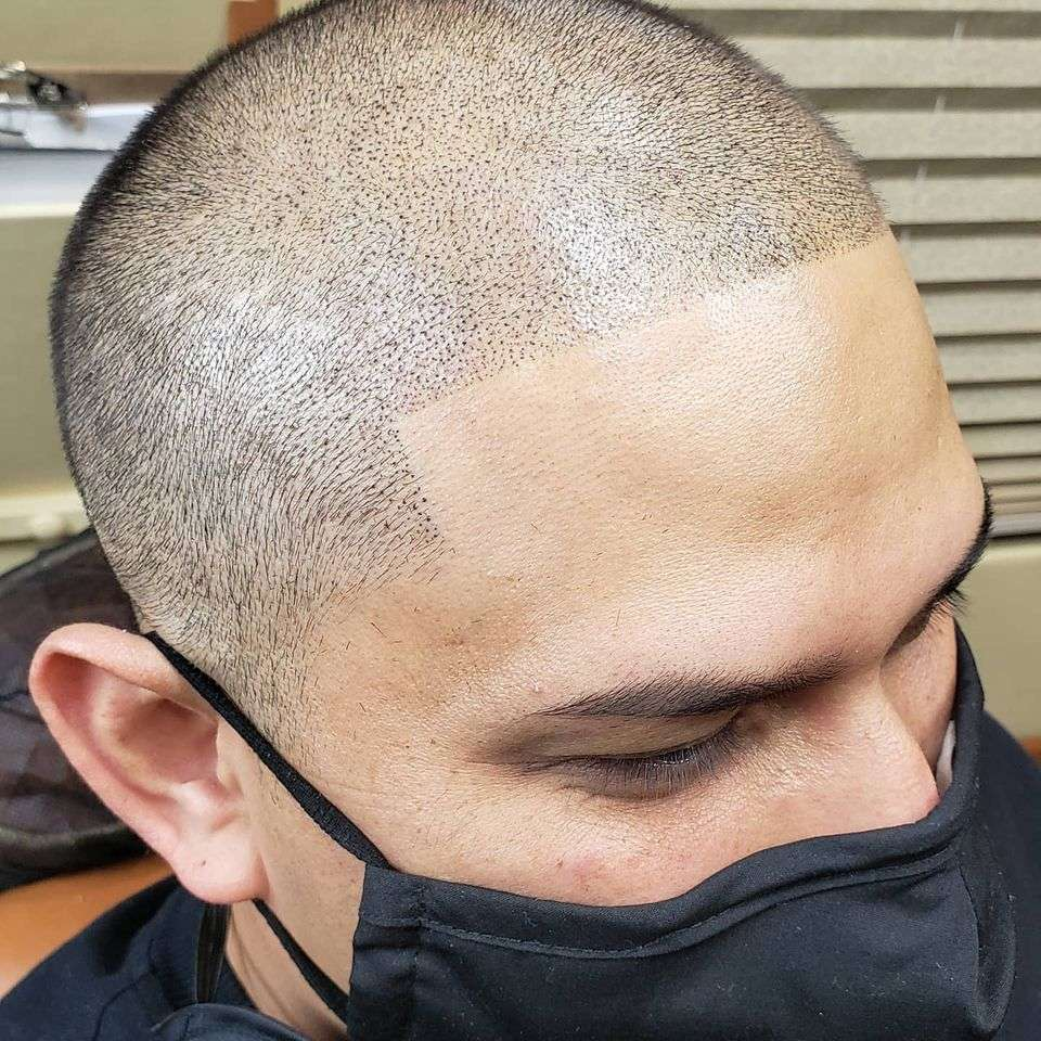 All about scalp micro-pigmentation Los Angeles